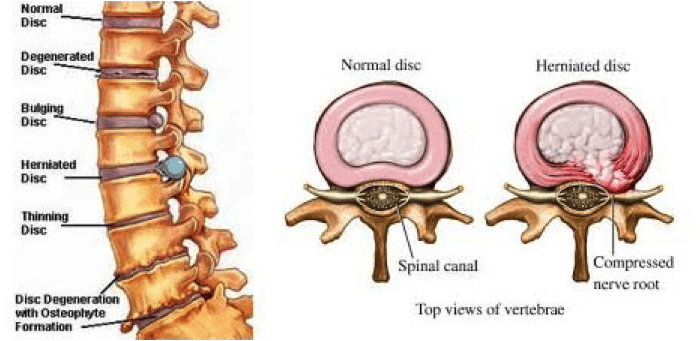 disc-bulge-or-disc-herniation